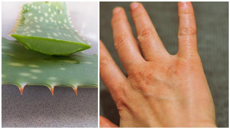 1428928837 aloe collage high
