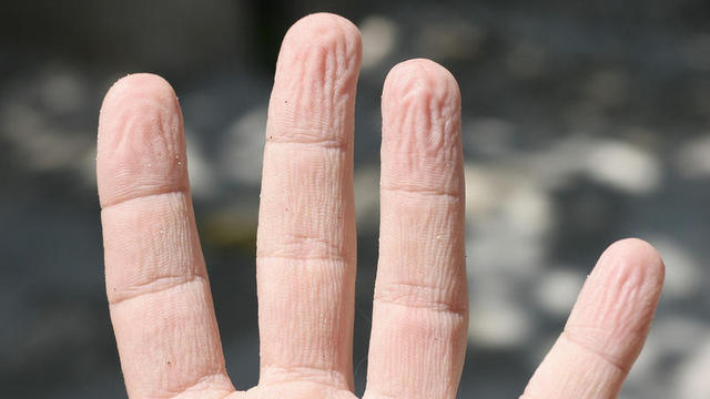 Schrumpelige Fingerkuppen